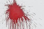 Ergebnis nächtlichen Attacke auf das Gebäude der SLpB (Quelle: SLpB)